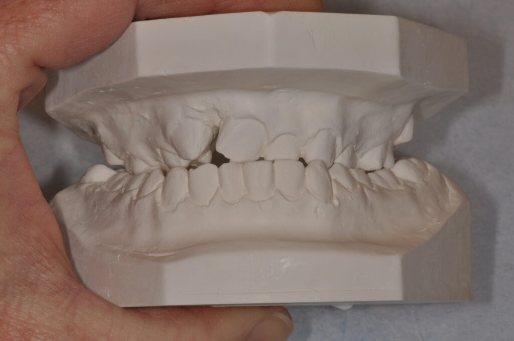 Gipsmodell av tänder.